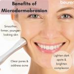 ประโยชน์ของ Microdermababrasion