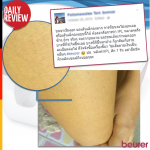 Daily Review: ขนขาเริ่มงอก แต่เส้นเล็กลงมาก