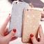 (025-990)เคสมือถือไอโฟน Case iPhone 7 Plus/8 Plus เคสนิ่มพื้นหลังลายวิ้งค์ Glitter แบบมีแหวนมือถือ/ไม่มีแหวนมือถือ thumbnail 4