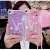 (514-001)เคสมือถือ Case OPPO F1 Plus (R9) เคสนิ่มกระต่าย Bunny Glitter