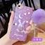 (514-004)เคสมือถือ Case OPPO R9s Plus เคสนิ่มกระต่าย Bunny Glitter thumbnail 3